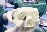 全省唯一!我院眼科首次实现在手术中应用3D打印技术,1:1还原!