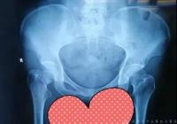 名医名院   手术当天就下地!亚洲通,亚洲通官网骨科首批开展侧卧位DAA入路微创全髋关节置换术